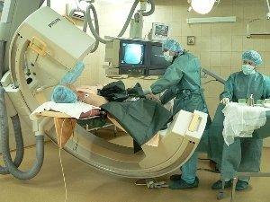 Ангиопластика и стентирование коронарных артерий и сосудов
