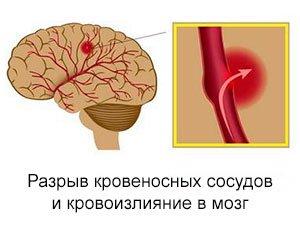 Вид геморрагического инсульта мозга
