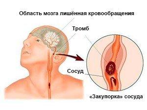 Вид ишемического инсульта мозга