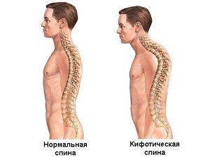 Типы спины: нормальная и кифотическая