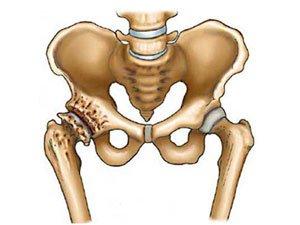 Степени артроза тазобедренного сустава