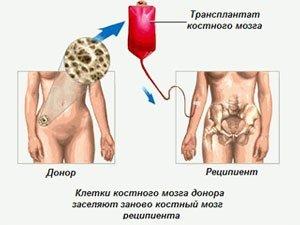 Как происходит трансплантация костного мозга