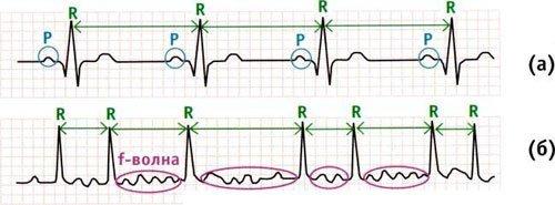 Как выглядит мерцательная аритмия на ЭКГ
