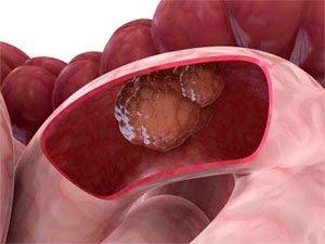 Диагностика рака тонкого кишечника