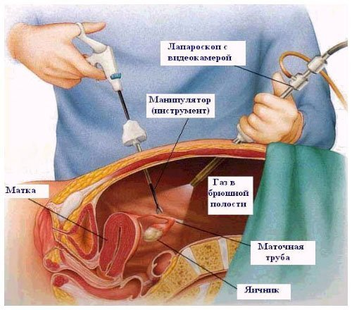 Врач гинеколога в красноярске отзывы