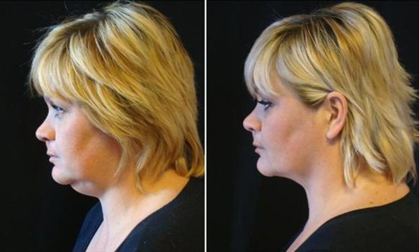 Фото пациентки до и после липосакции подбородка