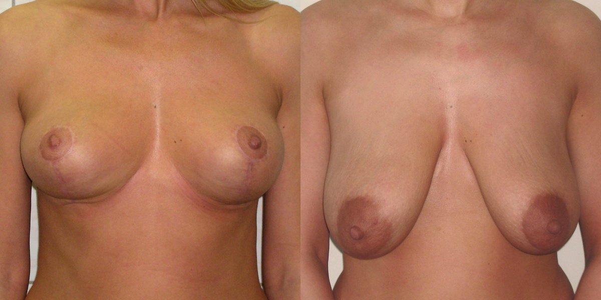 Фото Галины до и после редукционной маммопластики