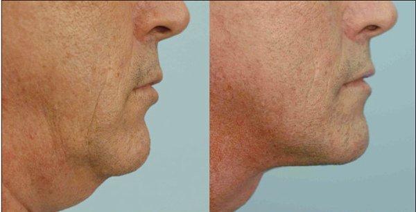 Фото пациента до и после операции