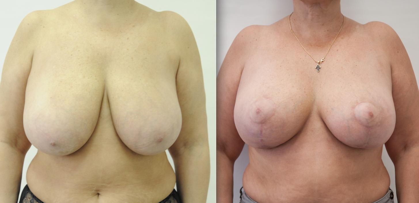 Фото Надежды до и после операции редукционная маммопластика