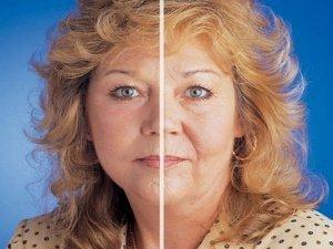 Отзывы Полины о биоармировании лица