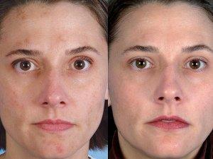 Отзывы о лазерной дермабразии лица