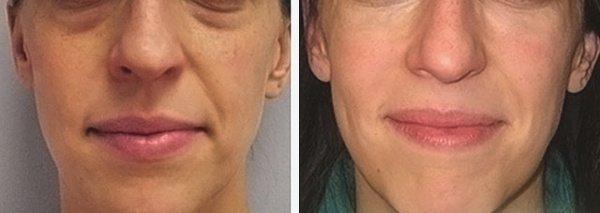 Фото до и после проведения контурной пластики носогубных складок