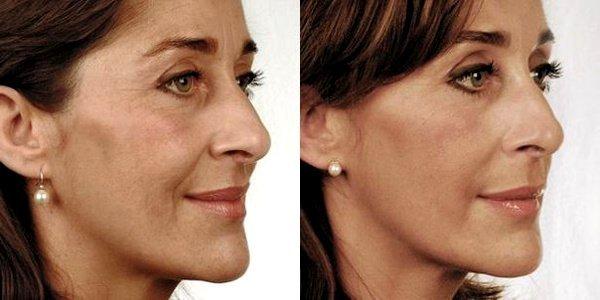 Фото до и после биорепарации лица