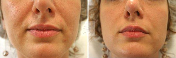 Фото до и после проведения процедуры контурная пластика носогубных складок