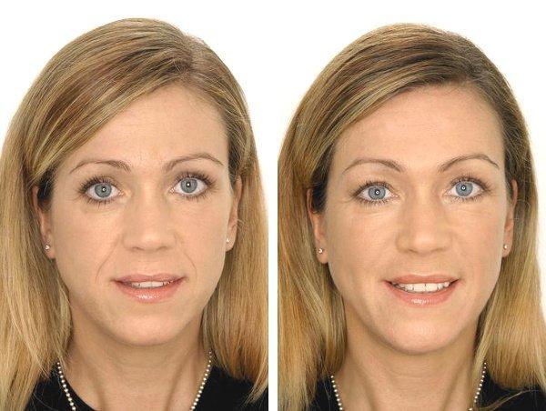 До и после проведения контурной пластики носогубных складок