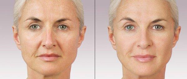 Фото до и после проведения контурной пластики