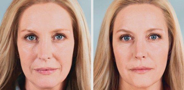 Фотографии до и после операции биорепарация