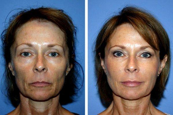 Фотографии до и после процедуры омоложения