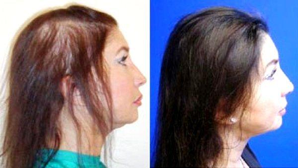 Фото пациентки до и после плазмолифтинга для волос