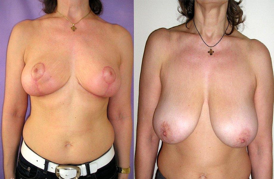 Фото до и после операции редукционная маммопластика