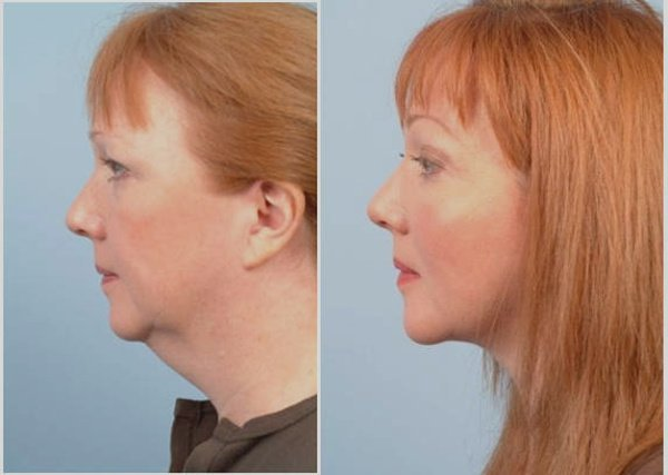 Фото до и после пластической операции