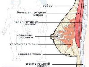 Схема женской груди для проведения операции