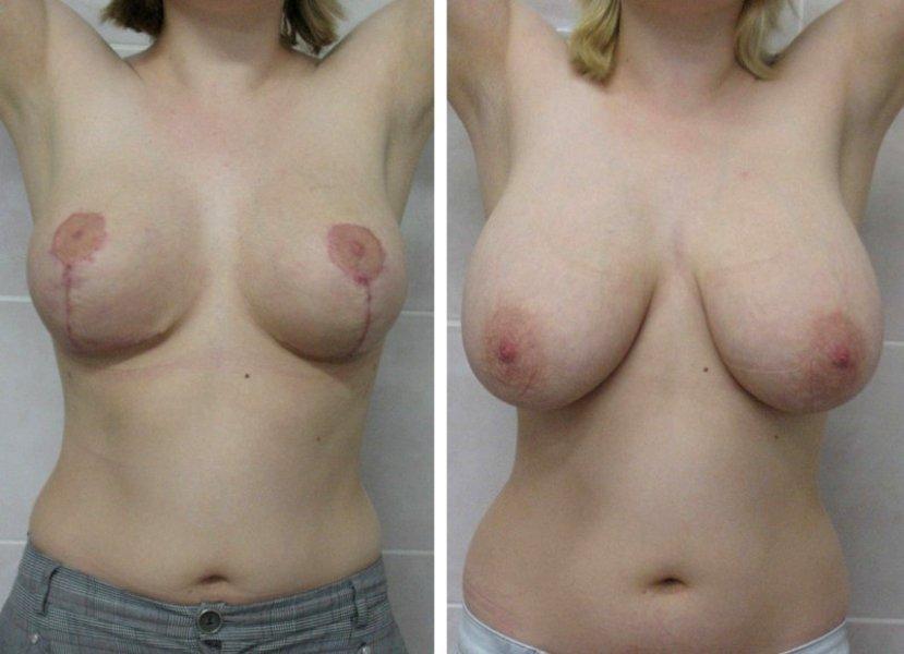 Фото Светланы до и после операции по редукционной маммопластике