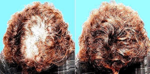 Плазмолифтинг волосы отзывы фото до и после
