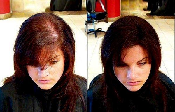 Фото пациентки до и после плазмолифтинга