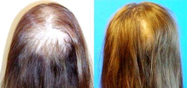 Фото до и после операции плазмолифтинг для волос