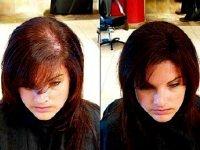 Отзывы о плазмолифтинге для волос