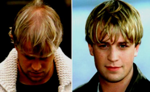 Фото пациента до и после плазмолифтинга для волос