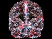 Магнитно-резонансная ангиография сосудов головного мозга