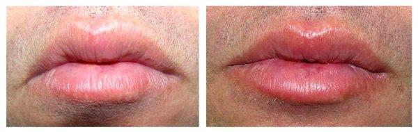 Фото с результатами хейлопластики у мужчины