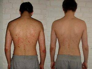 Лечение псориаза в корее - Псориаз. Лечение
