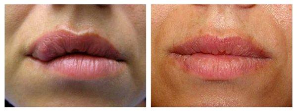 Фото до и после устранения деффекта губ