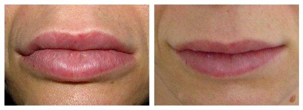 Фото до и после уменьшения губ