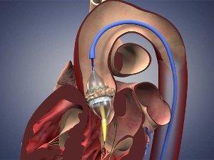 Обычная жизнь и работа сердца после замены аортального клапана без вскрытия грудной клетки