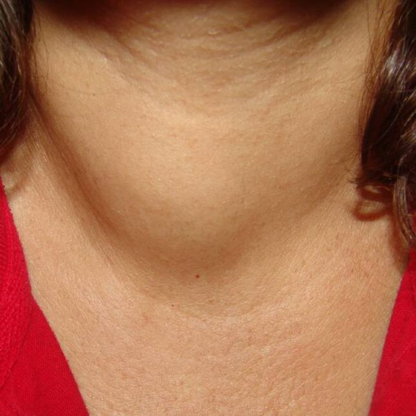 Увеличение размеров щитовидной железы при тиреоидите Хашимото