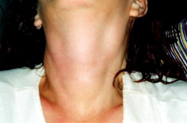 Симптомы аутоиммунного тиреоидита щитовидной железы