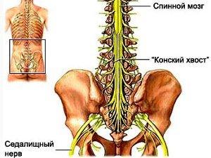 Что представляет собой синдром конского хвоста