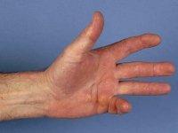 Изображение - Лечение суставов на мертвом море отзывы kontraktur