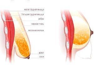 Увеличение груди подтяжка по ореоле