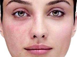 Методы избавления отт шрамов на лице после прыщей