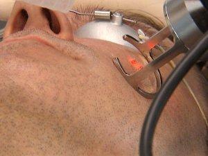 Лазерная шлифовка - метод борьбы с рубцами после прыщей на лице