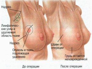 Выявление раковой опухоли молочной железы
