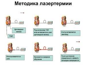 Лечение аденомы щитовидной железы лазером
