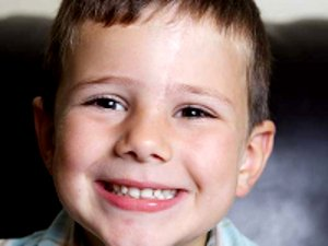 Как удалить шрамы с лица у ребёнка