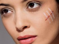 Как убрать шрамы с лица