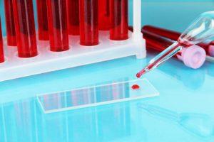 повышенный уровень мочевой кислоты в крови